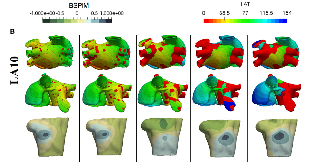 Atrial fibrosis hampers non-invasive localization of atrial ectopic foci from multi-electrode signals: A 3D simulation study